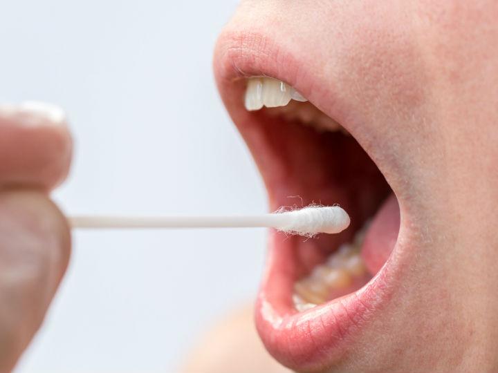 papiloma boca y garganta