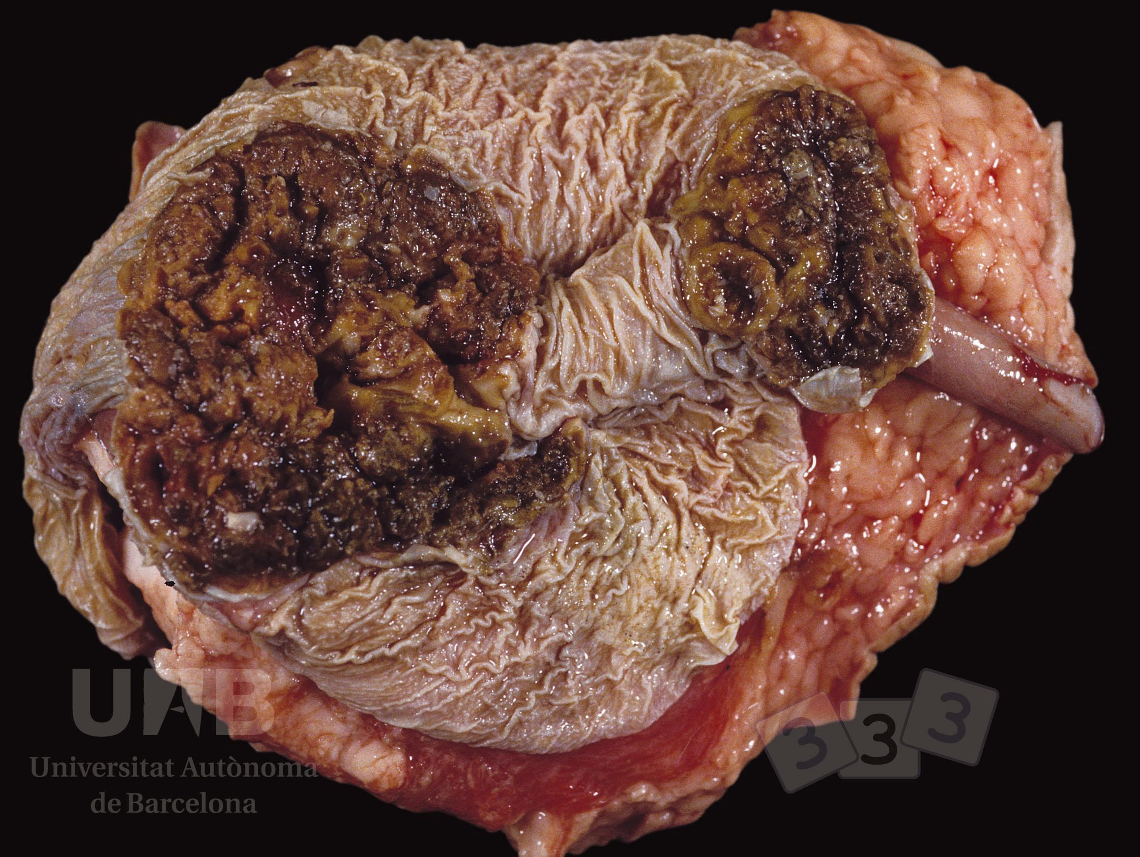 Importanta diagnosticarii precoce a cancerului |Anadolu