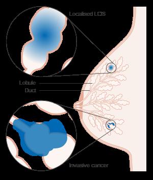 cancer de prostata aos 20 anos