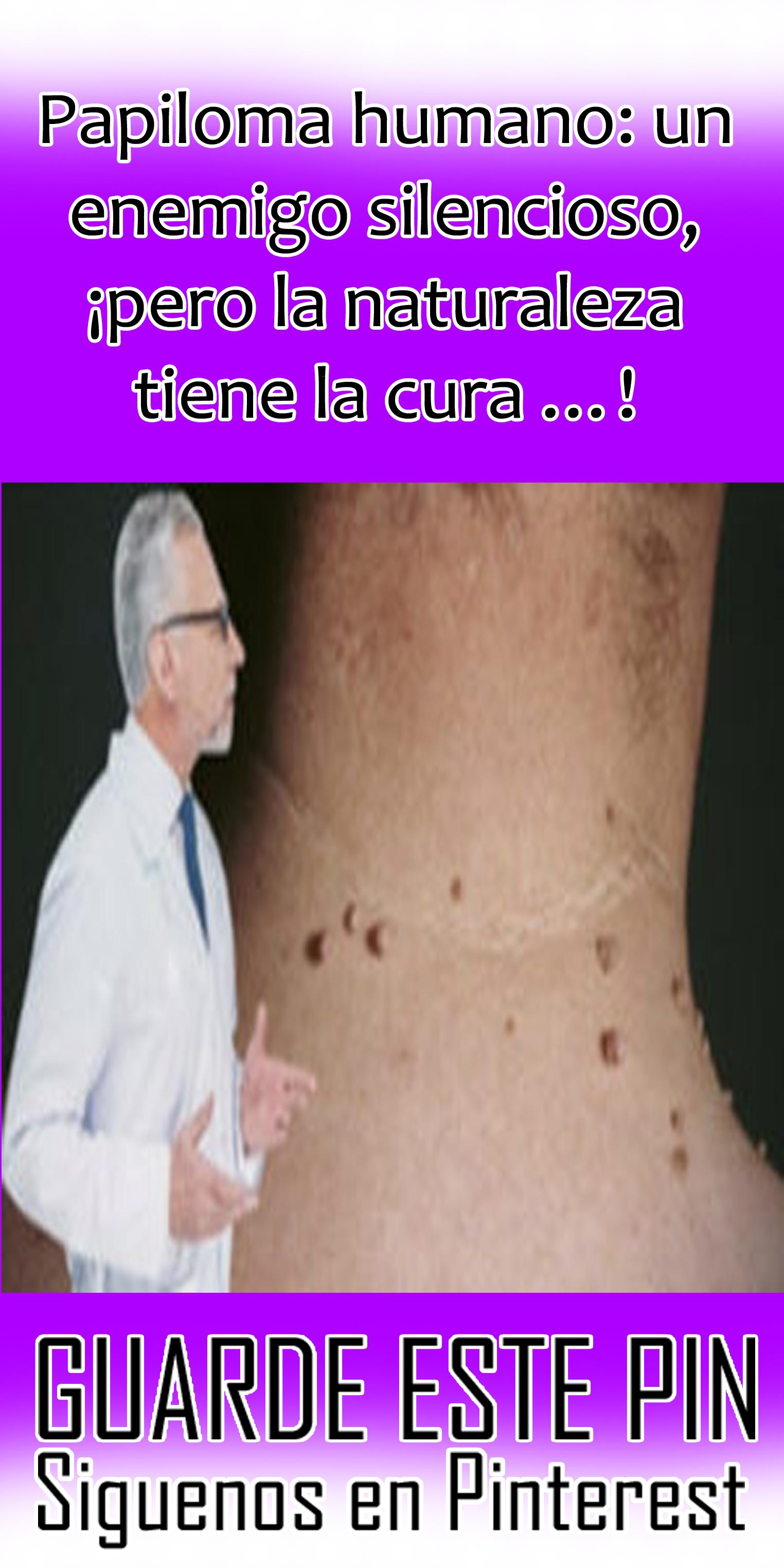 papiloma humano tiene curacion sinonasal papilloma pathology outlines