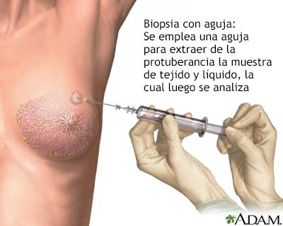hpv and throat problems cancer de tiroida cu metastaze