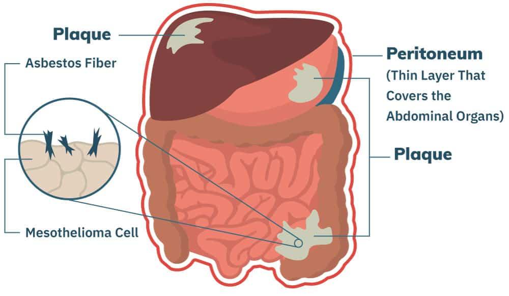 peritoneal cancer lump