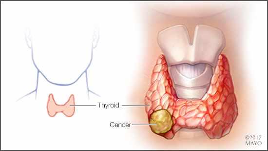 que es papillary thyroid cancer hpv virus tratamento