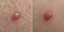 INFECŢIA GENITALĂ ŞI PERIGENITALĂ CU PAPILOMA VIRUSUL UMAN (HPV) LA COPILUL MIC.