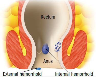 rectal cancer versus hemorrhoids