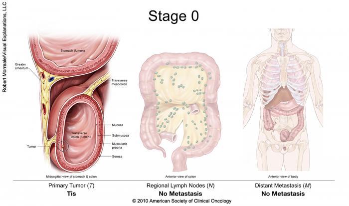 CHIRURGIA ROBOTICA pentru cancerul colo-rectal – Spitalul Pelican