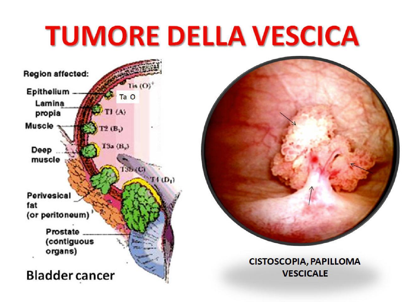 cum de a trata umflarea picioarelor de la varicoză consecințele operațiunii asupra venelor varicoase