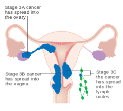 cancer colon bilan dextension juvenile laryngeal papillomatosis