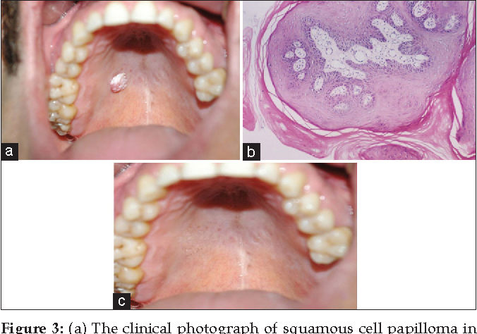 squamous cell papilloma in mouth virus del papiloma mapa conceptual