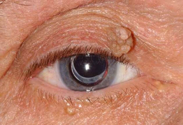 squamous papilloma eye