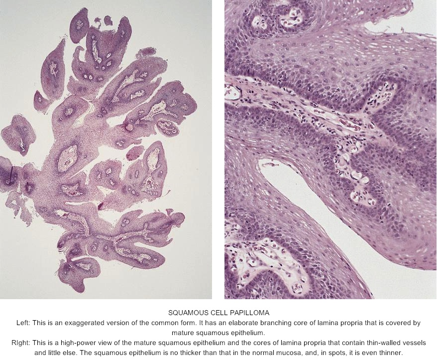 squamous papilloma of esophagus pathology outlines