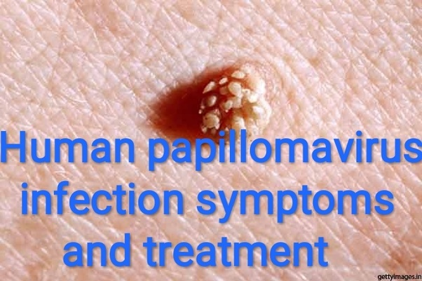 symptoms of human papilloma