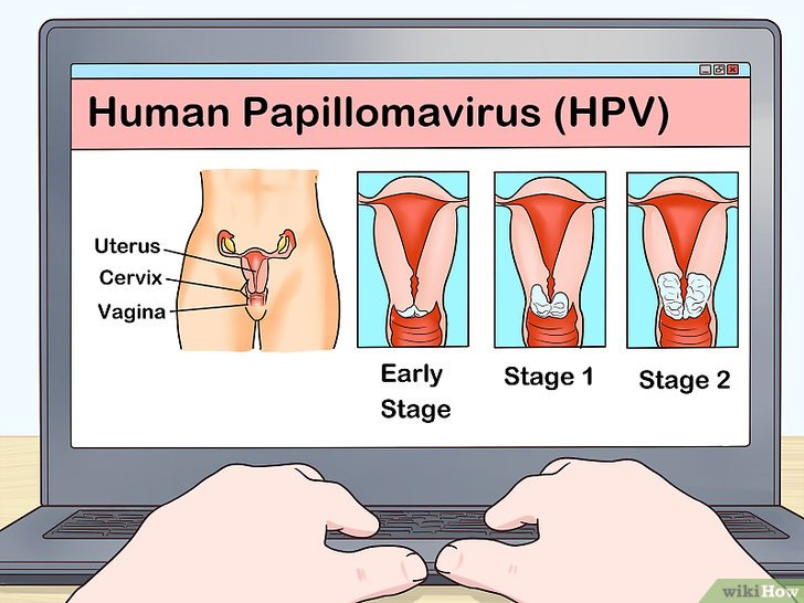 tengo virus de papiloma humano que hago