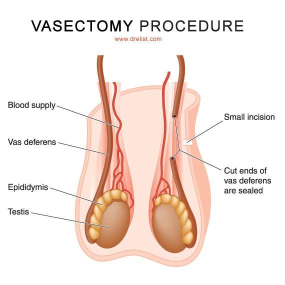 testicular cancer vasectomy vaccination papillomavirus garcon