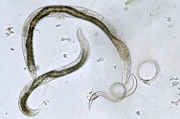 Tipuri de viermi paraziti la om