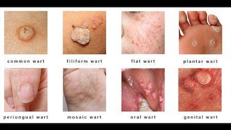 tratament homeopathic papilloma papilloma virus sulla lingua cura