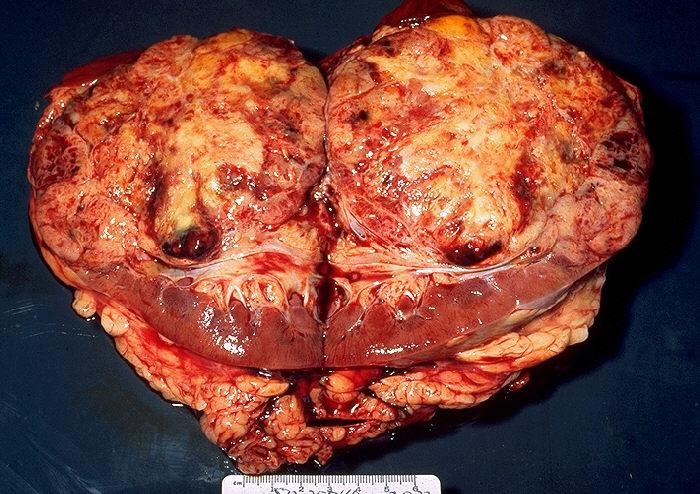 villous papilloma gallbladder