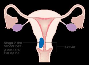 [Myometrial invasion as a prognostic factor in endometrial adenocarcinoma].