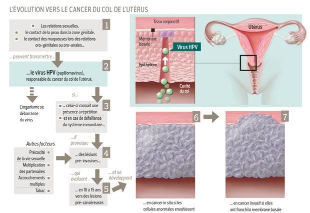 vaccin de cancer de col uterin
