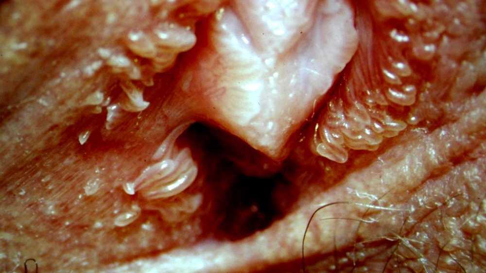 Ce este papilomatoza vestibulară și cum este tratată? 💊 Zi Medicament