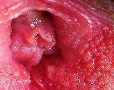 vestibular papillomatosis large inverted papilloma pathology outlines