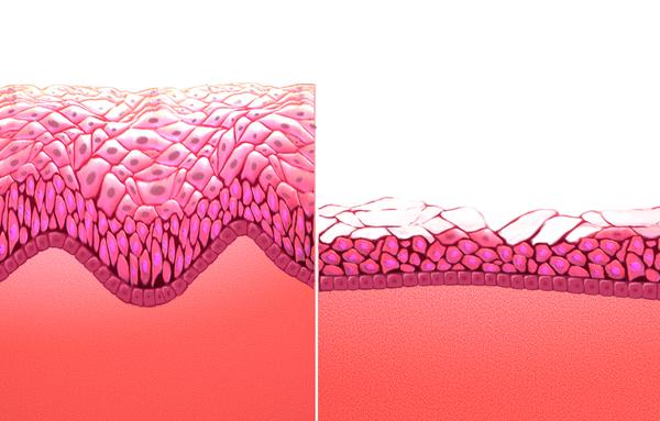 vestibular papillomatosis laser treatment viermi ocna sibiului
