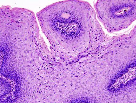 virus del papiloma humano causas sintomas y prevencion limbrici la om simptome
