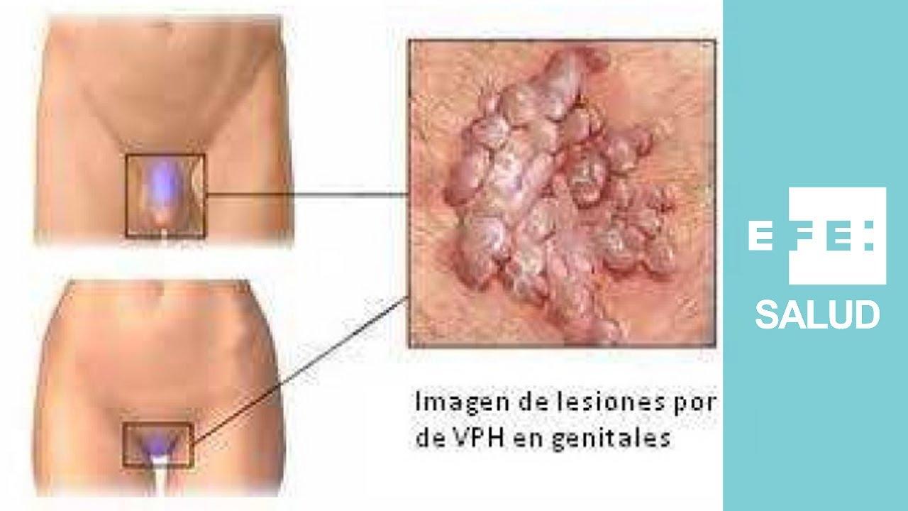 virus del papiloma humano sintomas