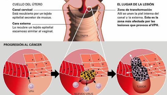 cancerul tiroidian poate recidiva