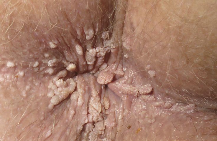 cervical cancer mri staging papillomavirus genital