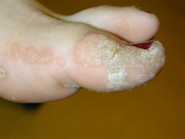 wart diabetic foot