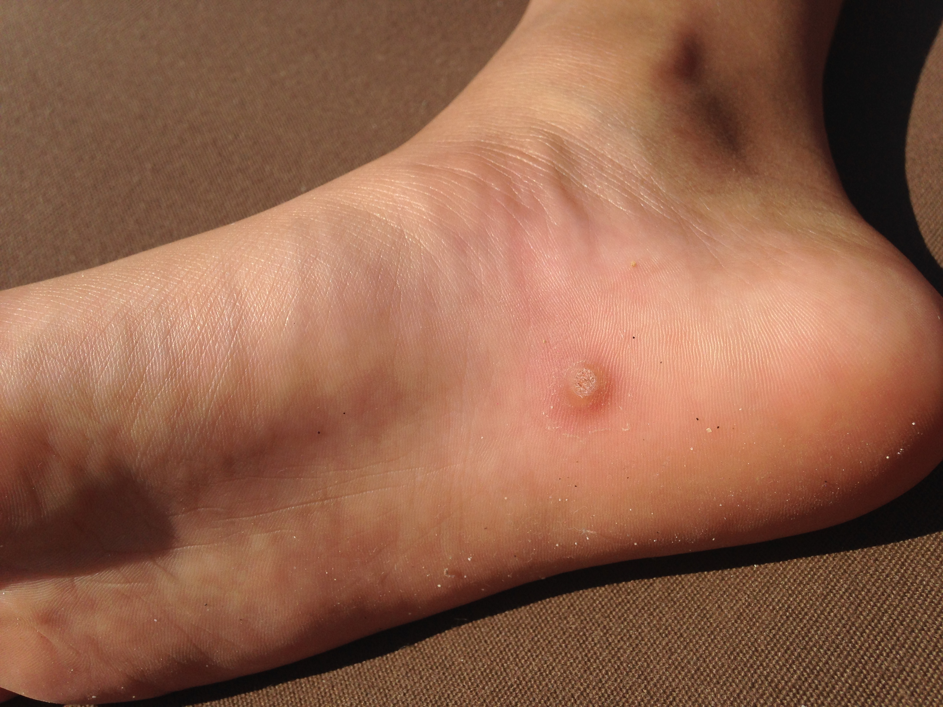 wart on foot 4 year old