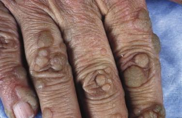 wart on scrotum skin hpv warts black