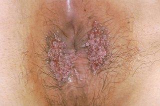 cancer colon t1 cauzele cancerului de plamani