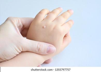 warts on hands in summer