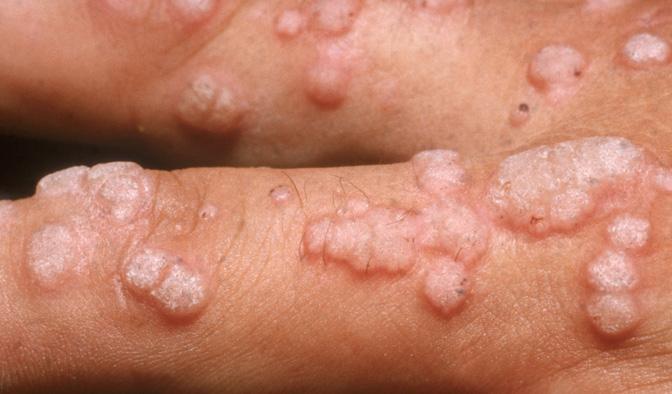zovirax papillomavirus