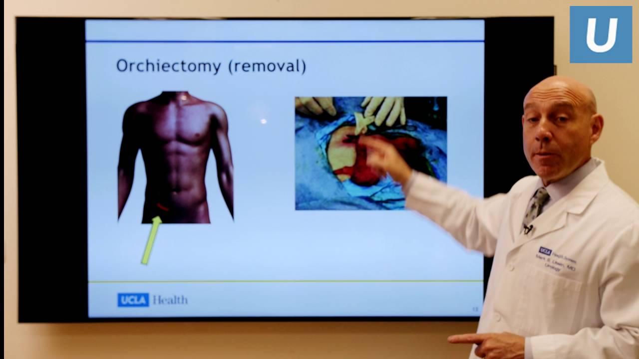 simptome cancer testicular avansat papillon zeugma last minute