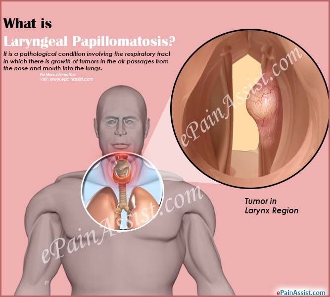 human papilloma vaccine side effects