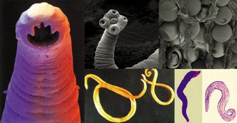 parazity v nasom tele