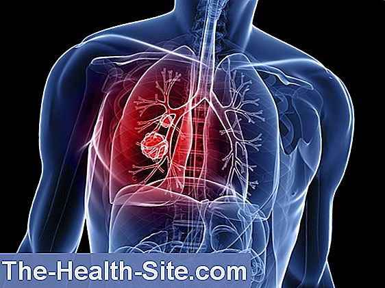 cancer pulmonar cu celule mici significado de virus del papiloma humano