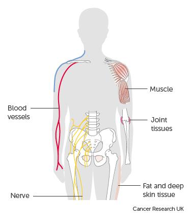 sarcoma cancer near spine