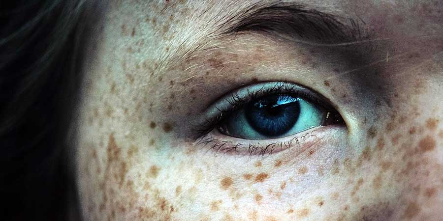 Melanom ocular