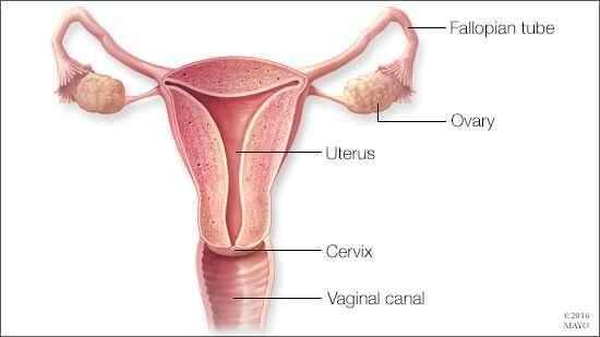 Poate salpingectomia bilaterală reduce riscul de cancer ovarian?
