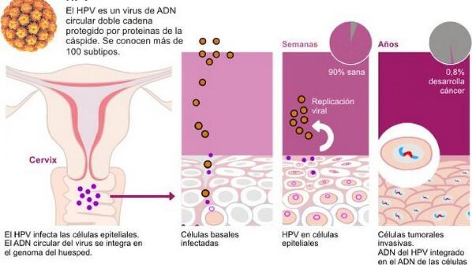 el hpv es cancer