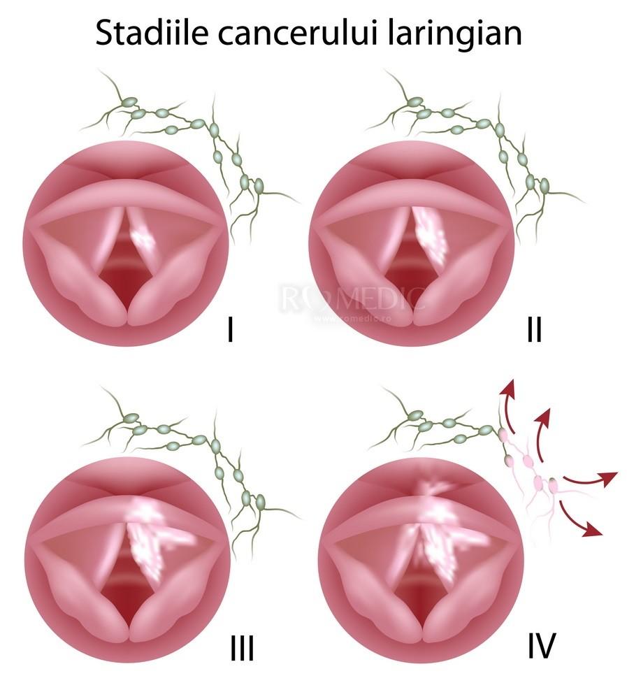 papilloma vescicale diagnosi