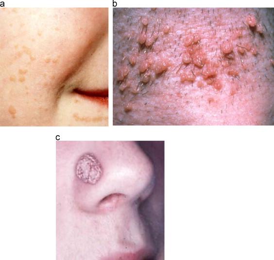 symptoms papillomavirus infection anemie 10