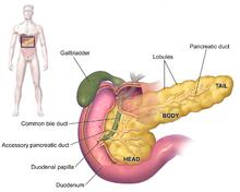 cancer peritoneal esperanza de vida