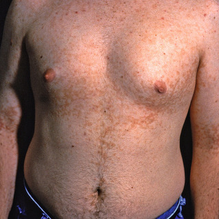 confluent and reticulated papillomatosis natural cure