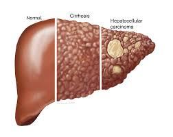 respiratory papillomatosis larynx hpv papiloma humano sintomas