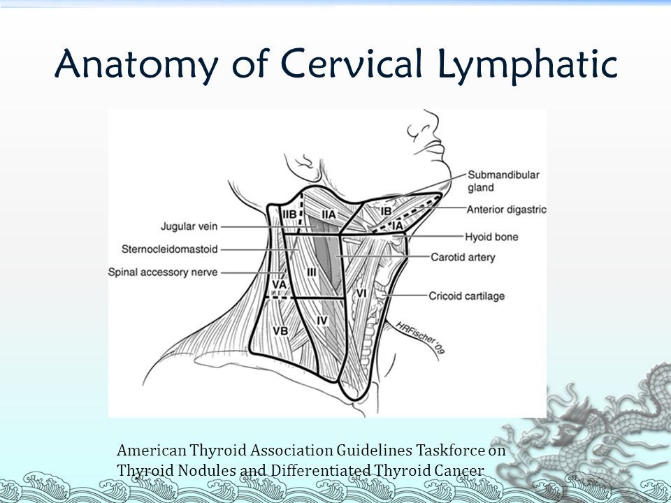 papillary thyroid cancer lateral neck dissection